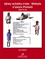 Clubfoot: Ponseti Management [Igbo]